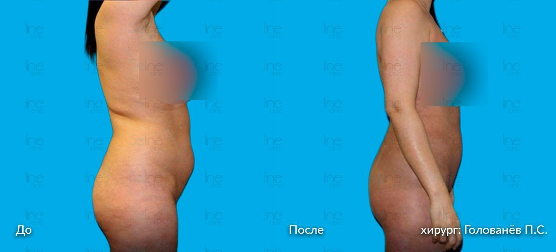 похудение в области талии и живота пцр
