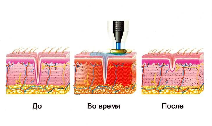 кожа до и после проведения процедуры RF - лифтинга
