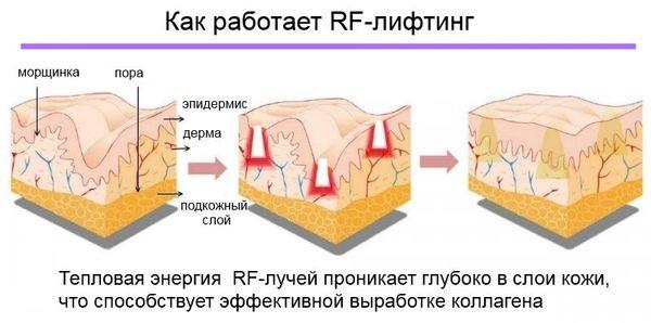 схема воздействия RF-лифтинга на эпидермис