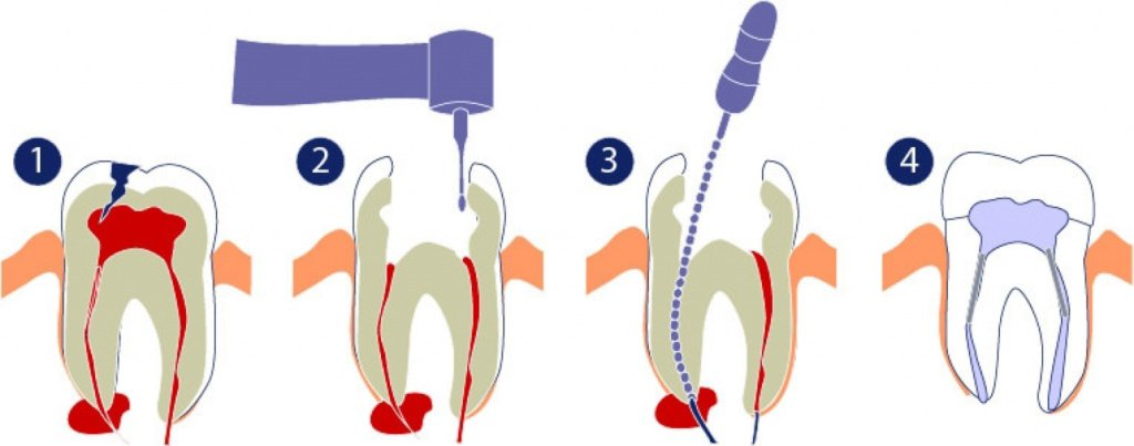 Удаление зуба с кистой на корне - ПрофиМед