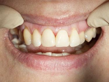 Световая пломба по цвету не отличается от зубов пациента