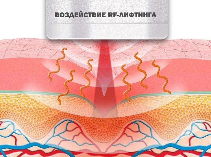 схема: воздйствие РФ лифтинга на кожу